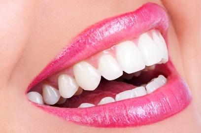 Teeth Whitening in Gaithersburg, MD